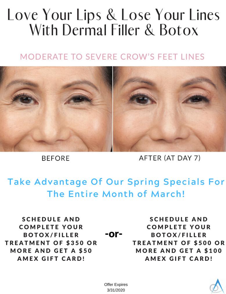 Spring Botox_Filler